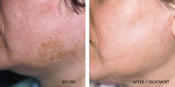 Melasma | American Academy of Dermatology