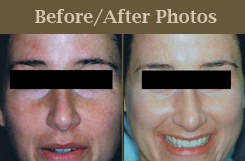 Fotofacial - Before and After