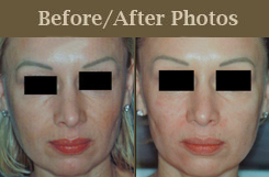 Refirme ST treatments - Before and after