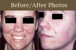 laser for acne - before and after