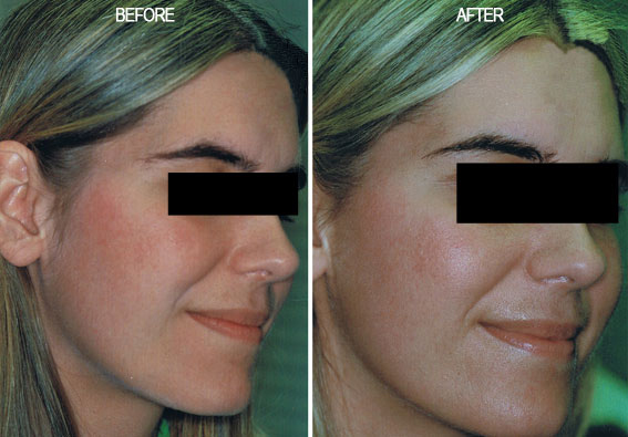 Rosacea Treated by Fotofacial