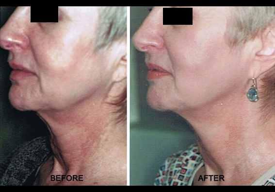 Affirm Multiplex & Refirme Skin Tightening