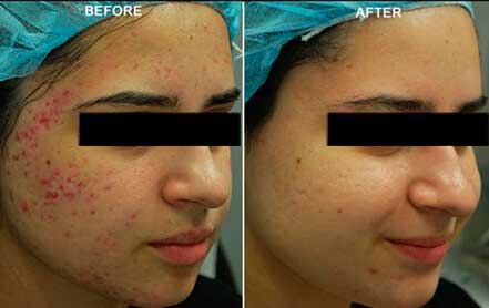 Young woman's face before and after acne treatment. Right cheek. Patient 5