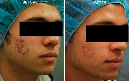 Young man's face before and after acne treatment. Right cheek. Patient 7
