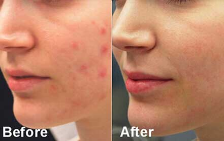 Young woman's face before and after acne treatment. Left cheek. Patient 8
