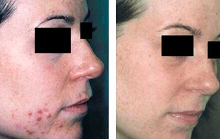 Young woman's face before and after acne treatment. Right cheek. Patient 9