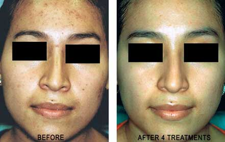 Young woman's face before and after acne treatment, forehead, front photo, patient 10