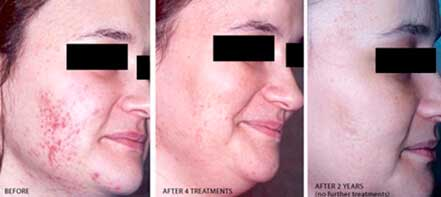 Young woman's face before and after acne treatment. Right cheek. Patient 11