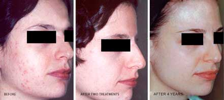Young woman's face before and after acne treatment. Right cheek. Patient 12