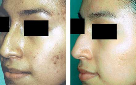Young woman's face before and after acne treatment. Left cheek. Patient 13
