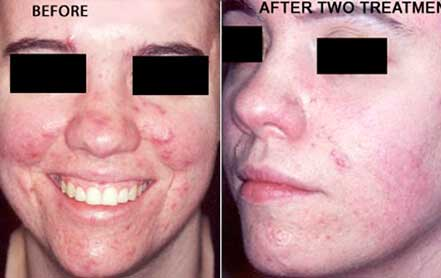 Young woman's face before and after acne treatment. Face and left cheek photos. Patient 14
