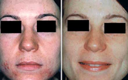 Young woman's face before and after acne treatment, cheek, front photo, patient 15