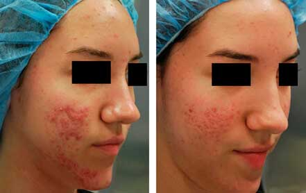 Young woman's face before and after acne treatment. Right cheek. Patient 2