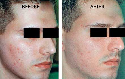 Young man's face before and after acne treatment. Right cheek. Patient 16