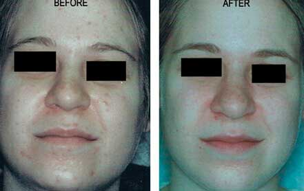 Young woman's face before and after acne treatment, cheek, front photo, patient 17