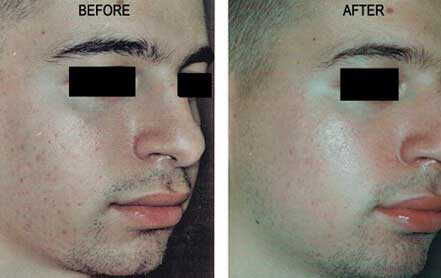 Young man face before and after acne treatment. Right cheek. Patient 18