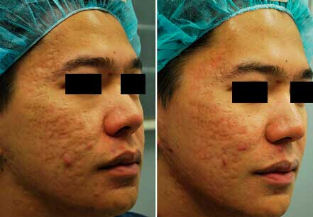 Young man's face before and after acne treatment. Right cheek. Patient 6