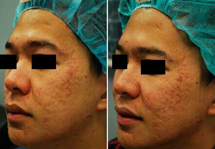 Young man's face before and after acne treatment. Left cheek. Patient 6