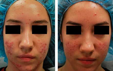 Young woman's face before and after acne treatment. Cheek, front photo. Patient 2