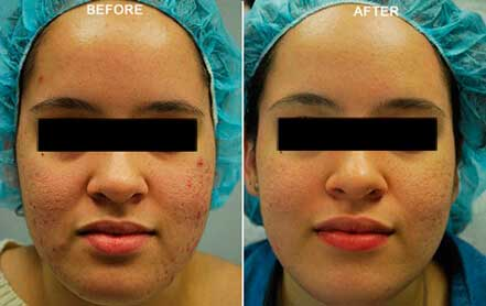 Young woman's face before and after acne treatment. Cheek, front photo. Patient 3