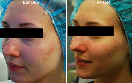 Young woman's face before and after acne treatment. Left cheek. Patient 4