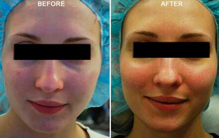 Young woman's face before and after acne treatment. Cheek, front photo. Patient 4
