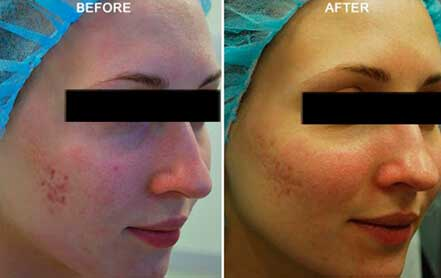 Young woman's face before and after acne treatment. Right cheek. Patient 4