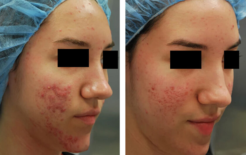 Acne Scars Before Amp After Photos New York