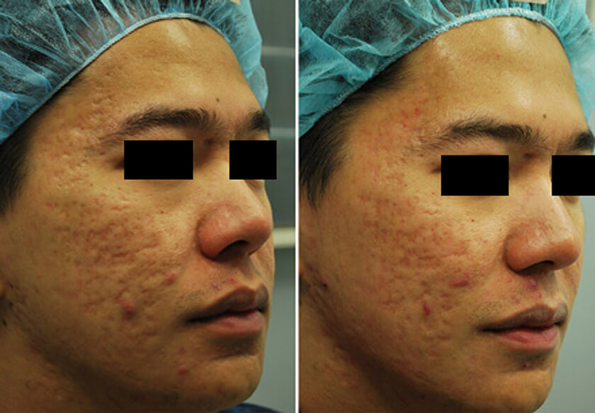 Acne Scars Before & After Photos New York