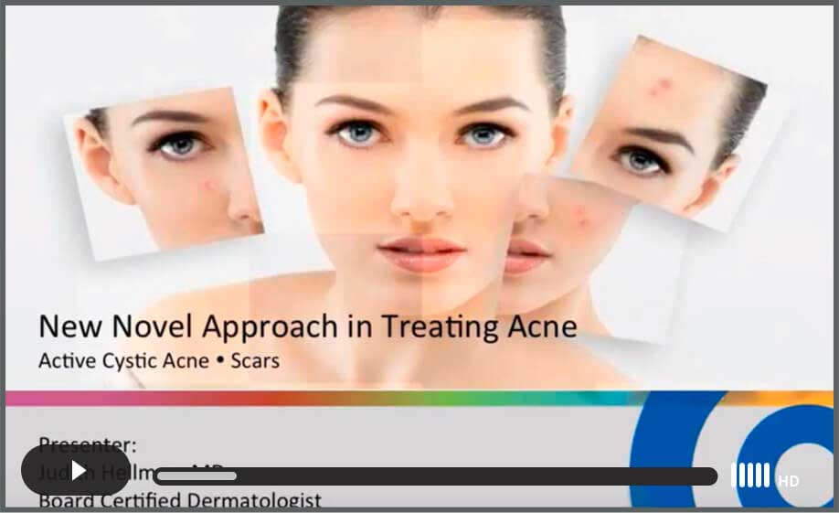Watch Video: New Novel Approach in Treating Acne