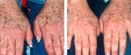 AGING HANDS - BEFORE and AFTER Photos - Female, patient 1 (hands, top view)
