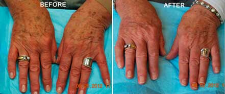 AGING HANDS - BEFORE and AFTER Photos - Woman, patient 2 (hands, top view)