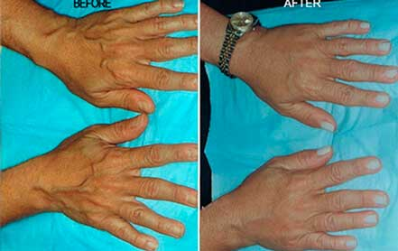 AGING HANDS - BEFORE and AFTER Photos - Female, patient 3 (hands, top view)