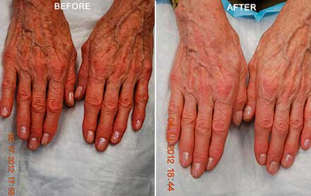 AGING HANDS - BEFORE and AFTER Photos - Woman, patient 4 (hands, top view)