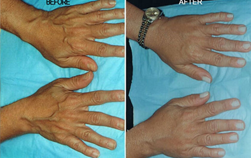 Aging Hands Before Amp After Photos