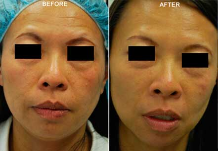 Young woman's face, before and after botox treatment. Forehead. Patient 18 (front view)