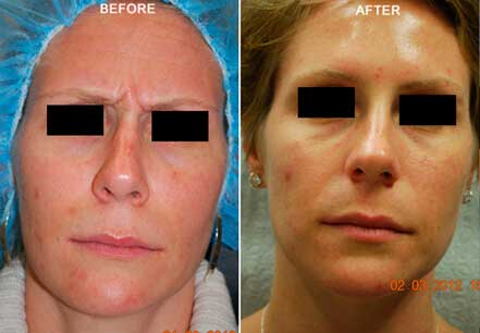 Female face, before and after botox treatment. Forehead. Patient 19 (front view)