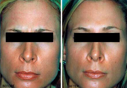 Young woman's face, before and after botox treatment. Forehead. Patient 21 (front view)