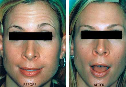 BOTOX & DYSPORT BEFORE & AFTER Treatment PHOTOS - Female (patient 14; frontal view)