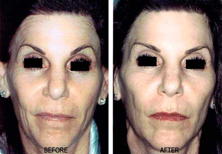 Old female face, before and after botox treatment. Forehead, eyelids. Patient 25 (front view)