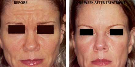Female face, before and after botox treatment. Forehead, eyelids. Patient 23 (front view)