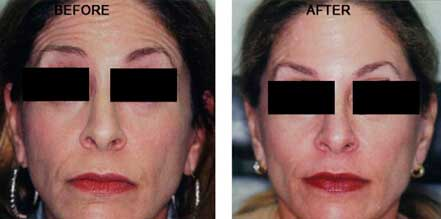 Old female face, before and after botox treatment. Forehead, eyelids, lips. Patient 24 (front view)
