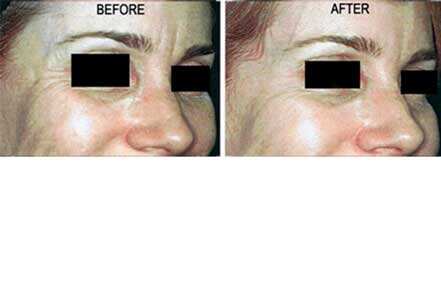 Old female face, before and after botox treatment. Forehead, eyelids. Patient 26 (oblique view)