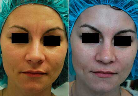 Young woman's face, before and after botox treatment. Forehead. Patient 20 (front view)