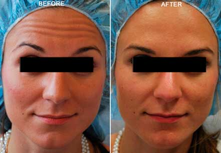 Young woman's face, before and after botox treatment. Forehead. Patient 10 (front view)