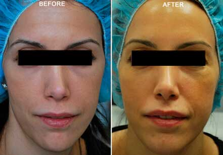 Young woman's face, before and after botox treatment. Forehead. Patient 11 (front view)