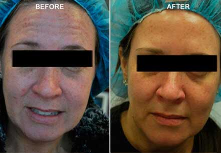 Old female face, before and after botox treatment. Forehead, lips, chin. Patient 12 (front view)