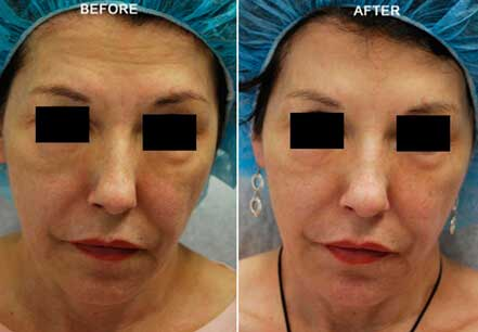 BOTOX & DYSPORT BEFORE & AFTER Treatment PHOTOS - Female (patient 5; frontal view)