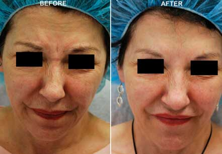 Old female face, before and after botox treatment. Forehead, nose, eyelids. Patient 14 (front view)