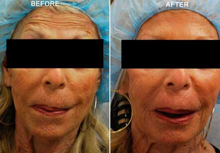 Old woman's face, before and after botox treatment. Forehead, nose, eyelids. Patient 15 (front view)